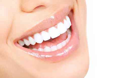 VidaDent Dental Practice - Two veneers with exams, follow-ups and trays - Save 50%