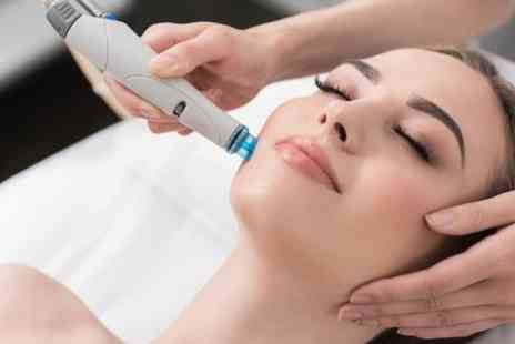 Carolines nails and beauty - One or Three Diamond Microdermabrasion Facials with Face Massage and Mask - Save 74%