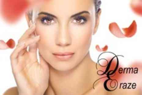 Derma Eraze - Four Sessions of Laser Thread Vein Treatment - Save 0%