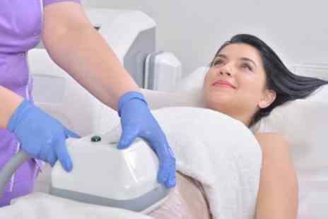 Moda Donna Beauty Clinic - Cryogenic Lipolysis on Up to Four Areas - Save 70%