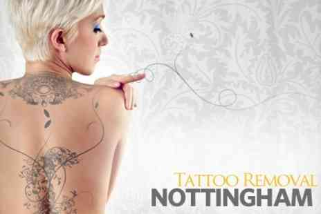 Tattoo Removal Nottingham - Course of Three Laser Tattoo Removal Sessions - Save 61%
