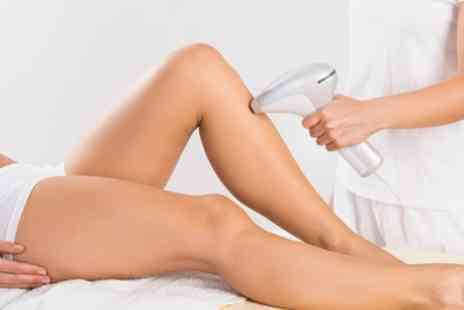 Skin Renew Otley - Six Sessions of IPL Hair Removal on One Small, Medium or Large Area - Save 77%