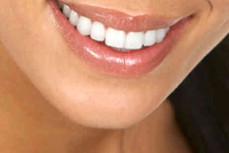 I Want White Teeth - Home Teeth Whitening Kit - Save 84%