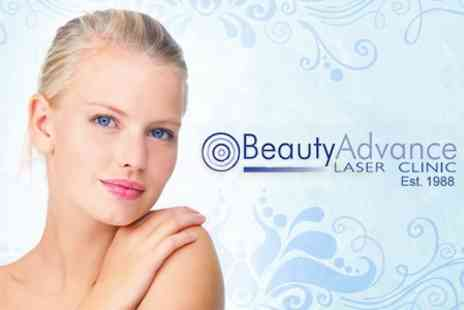 Beauty Advance - Pumpkin Peel Facial - Save 67%