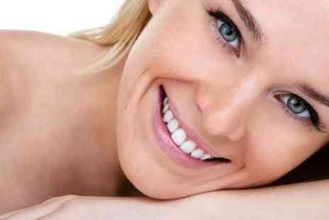 Smile - One Hour Laser Teeth Whitening at UK Wide Locations - Save 74%