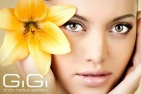 GiGi London Medical Aesthetics - Glycolic Peel One - Save 61%