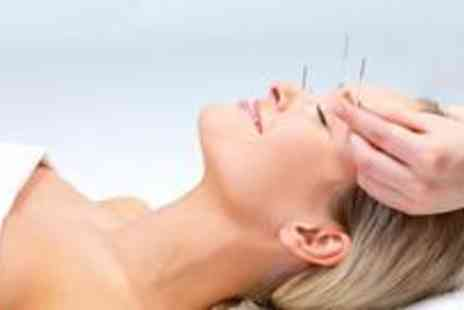 Chinese Health Clinic - Facial acupuntcure and a cupping treatment - Save 15%