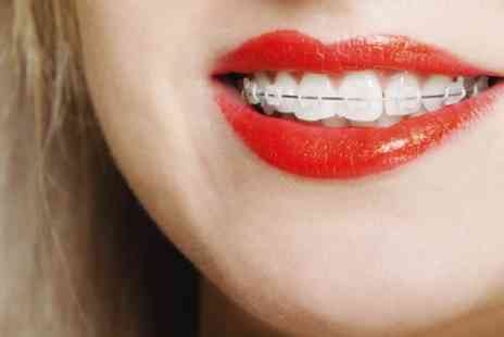 Buckingham Gate Orthodontics - Clear Braces with Ceramic Brackets for Upper and Lower Arches - Save 40%