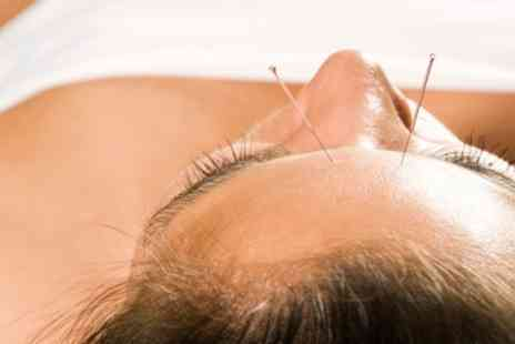 Chandlers Ford Chinese medical centre - One or Three Acupuncture Sessions and Optional Facial - Save 55%