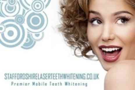 Staffordshire Laser Teeth Whitening - One Session of Laser Teeth Whitening - Save 70%